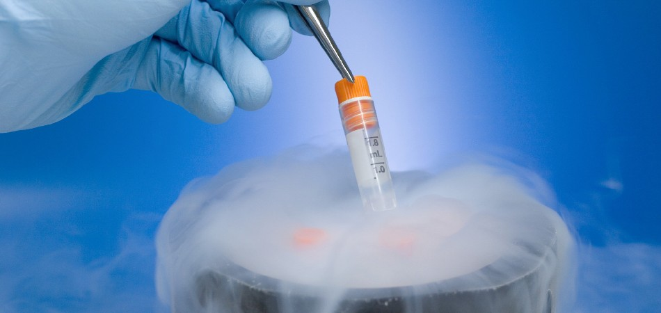Fertility Cryopreservation
